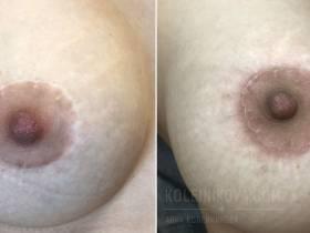 Скрыть рубцы после маммопластики поможет татуаж ареол.